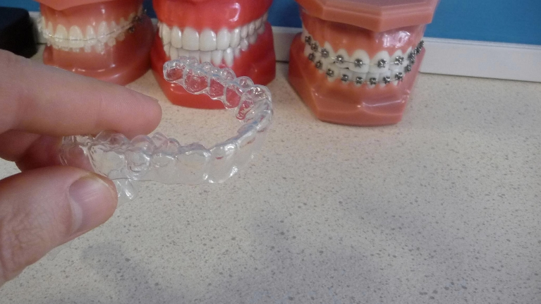 12 Do's and Don'ts for successful retainer wear
