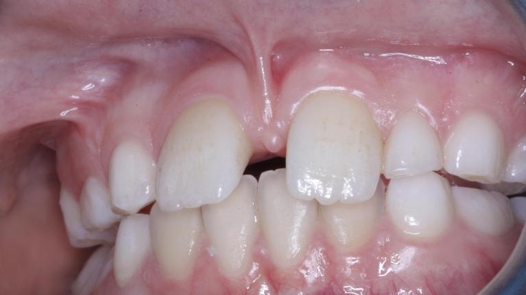 swords orthodontics blog