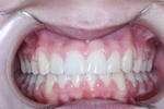 Original-Problem-Abnormal-Tooth-Position-Crowding-After-Image
