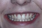 Original-Problem-Overlapping-Teeth-Crowding-Crossbite-After-Image