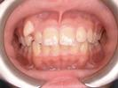 Original-Problem-Abnormal-Tooth-Position-Crowding-Impaction-Before-Image