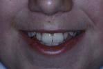 Original-Problem-Overlapping-Teeth-Crowding-Before-Image