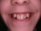 Original-Problem-Overlapping-Teeth-Crowding-Crossbite-Before-Image