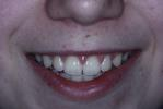 Original-Problem-Overlapping-Teeth-Crowding-After-Image