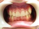 Original-Problem-Abnormal-Tooth-Position-Crowding-Before-Image
