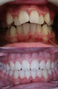 We took a patients braces off today, such a great result :)
