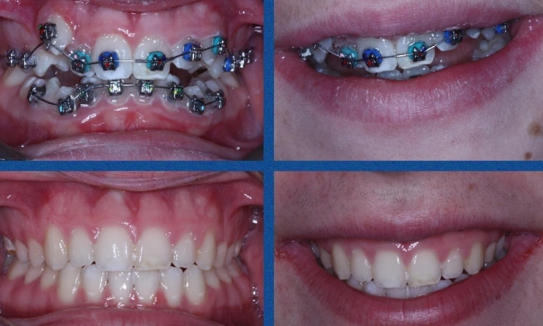 Before and after fixed Orthodontic treatment