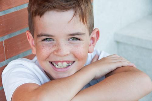 Orthodontic Care For Young Children Swords Dublin Swords