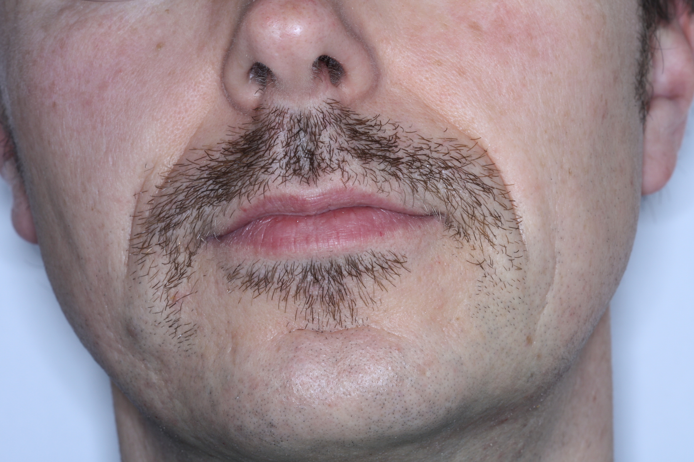 Dr Stephen Murray from Swords Orthodontics Movember Day 12