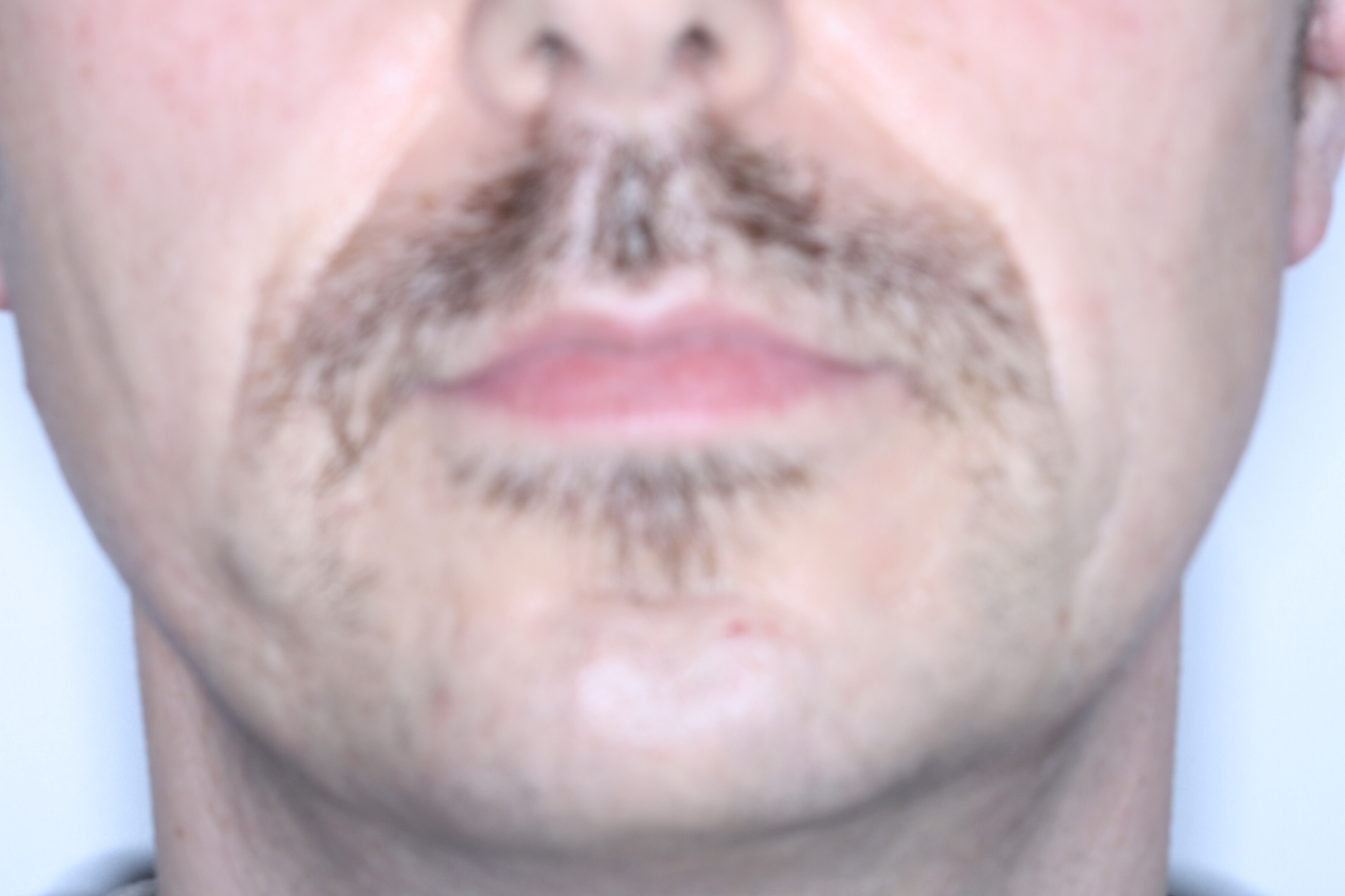 Dr Stephen Murray of Swords Orthodontics supports Movember, day 13