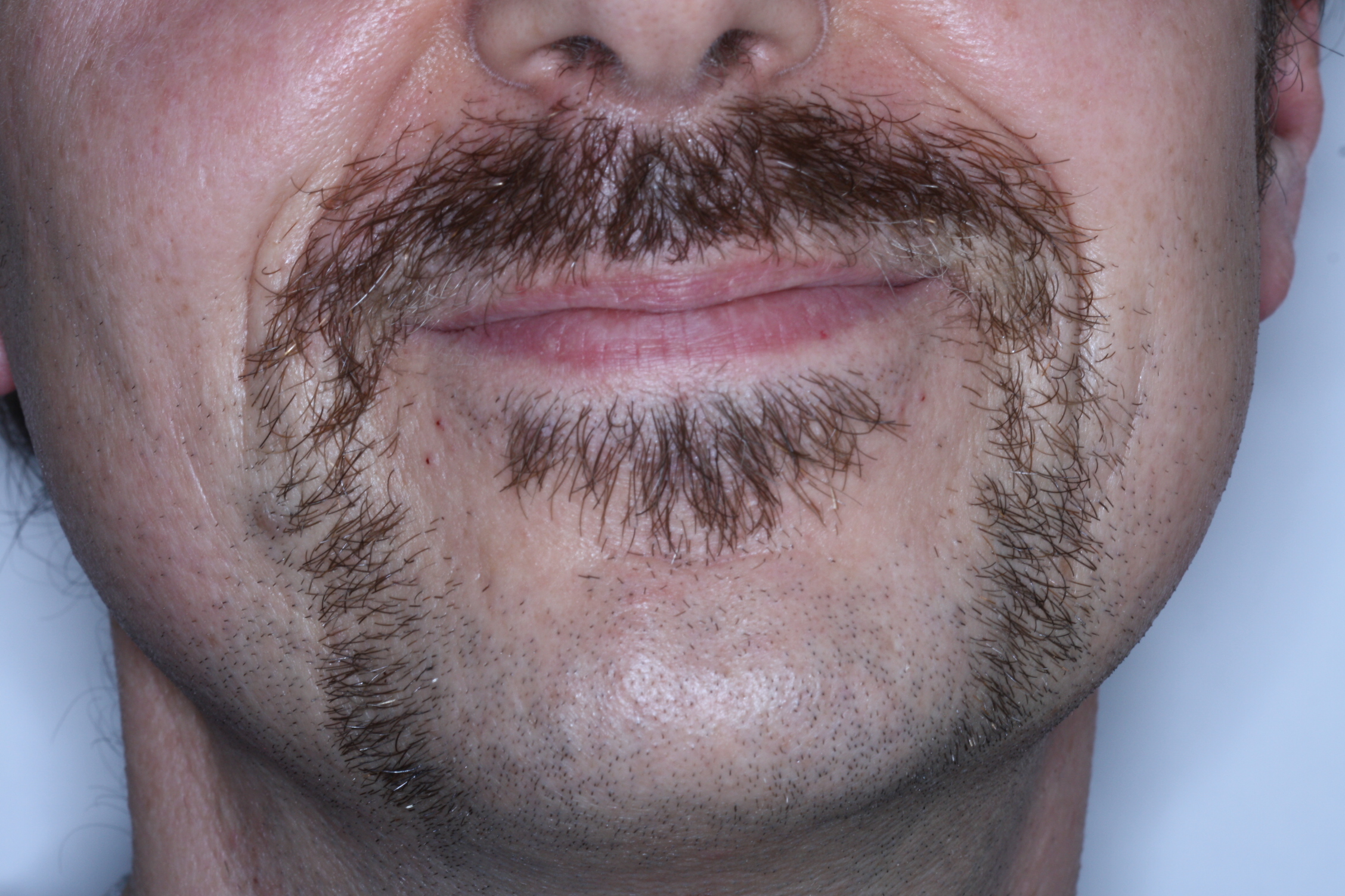 Mo close up of Dr Stephen Murray from Swords Orthodontics on Movember 25th