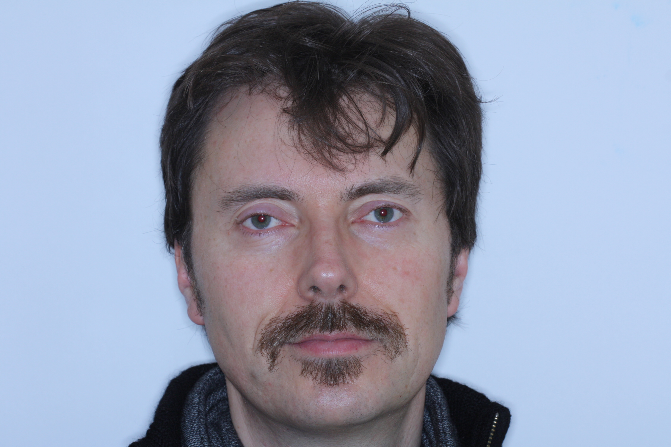 Dr Stephen Murray from Swords Orthodontics channels his inner Frank Zappa before finally removing the Movember evidence