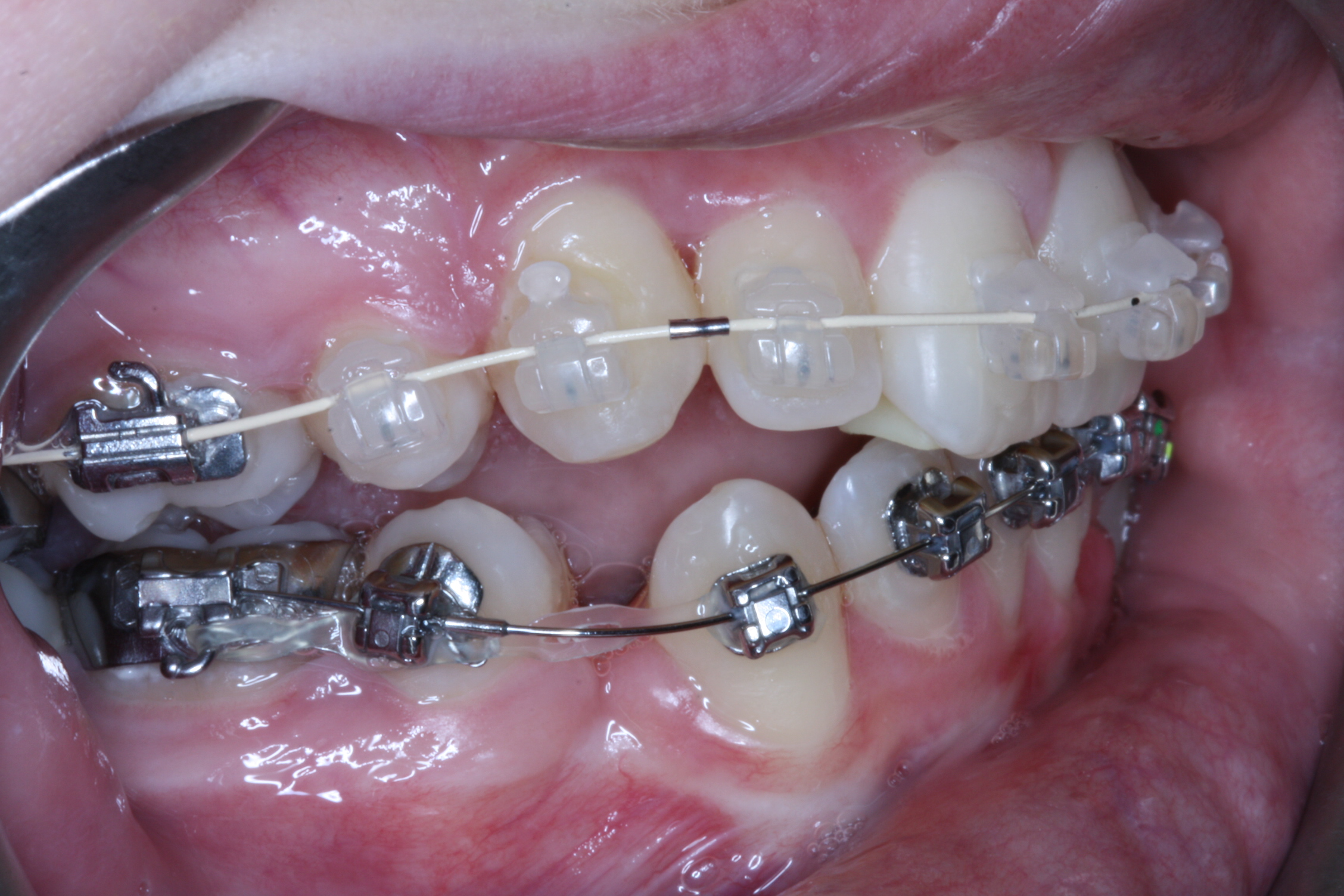Space between teeth in treatment isn't unusual, but why would there be spaces between teeth to begin with?