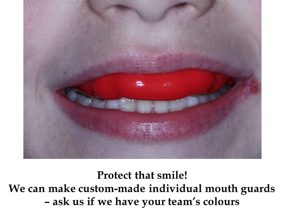 Protect your smile with an individual mouthguards. Swords Orthodontics can make them in team colours