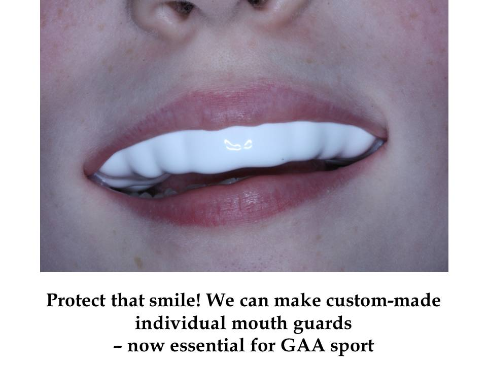 Another Swords Orthodontics mouthguard in team colours protecting a smile