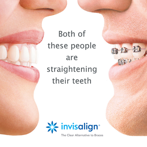 There is a clear difference between Invisalign and metal braces at Swords Orthodontics