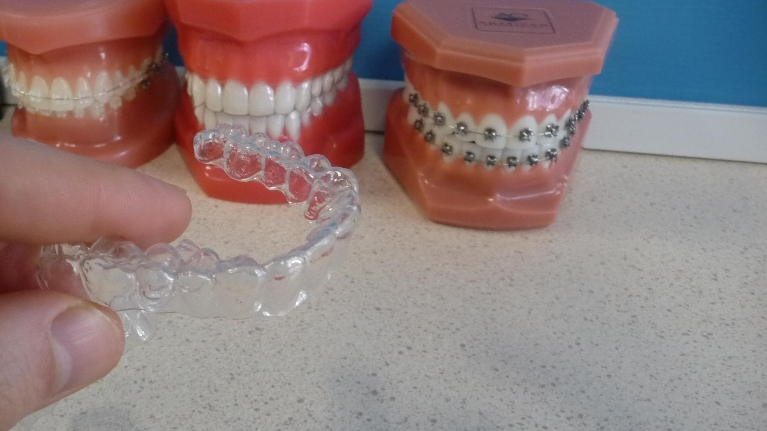 Invisalign clear braces compared to other braces