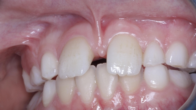 Frenectomy Cost   Best Dental in Houston, TX