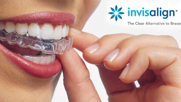 What's really possible with Invisalign?