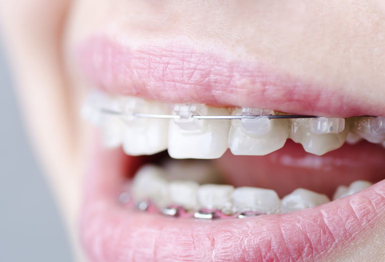 Swords Orthodontics | Clear Fixed Braces